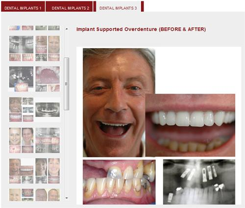 Patient Gallery - Dental Implants